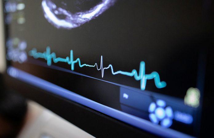 Bild på hjärtrytmkurva.